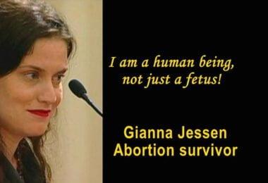 Gianna Jessen 3